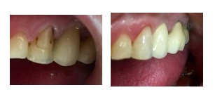 Cosmetic Dentistry - Case 3